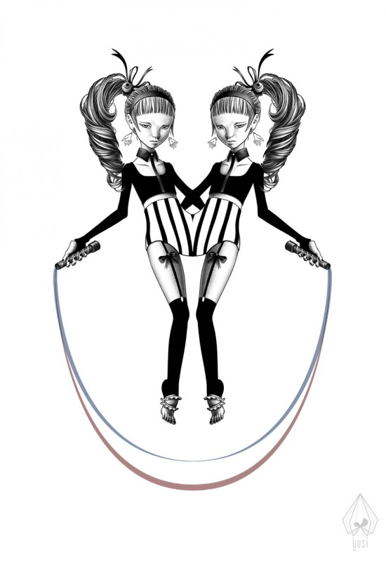 Illustration of a pair of conjoined twins